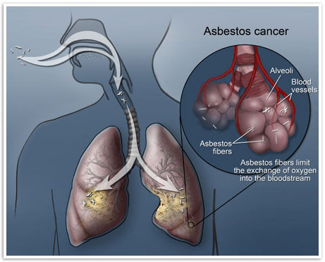 photo courtesy of http://www.mesothelioma.com/